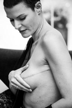 Association contre le cancer du sein